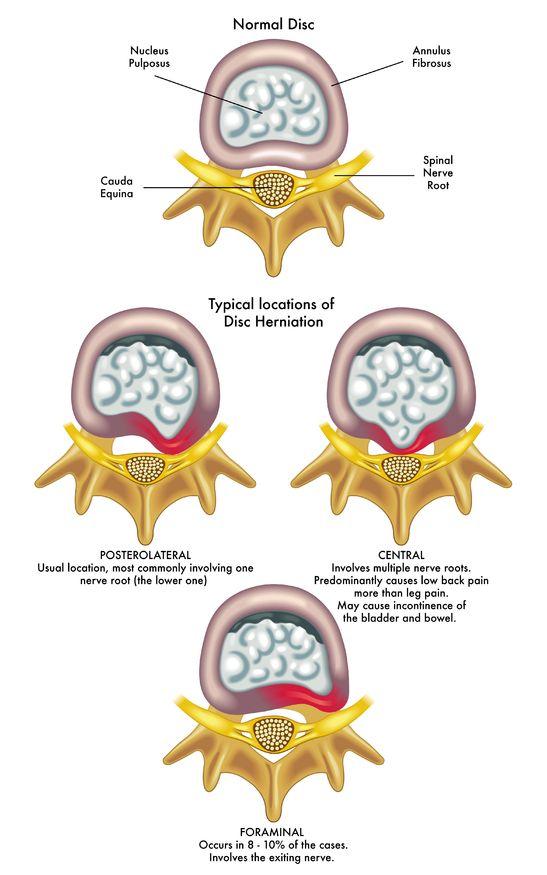 腰部椎間板ヘルニアの説明画像