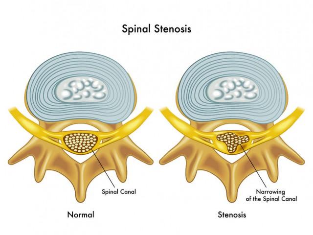 坐骨神経痛の原因と言われる脊柱管狭窄症