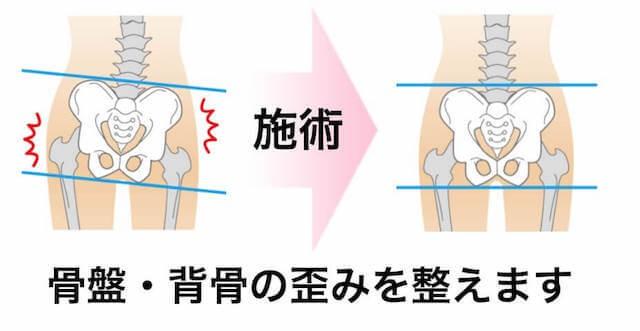 腰痛の根本改善のための施術1