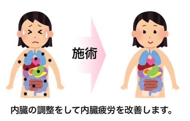 腰痛を改善する施術3