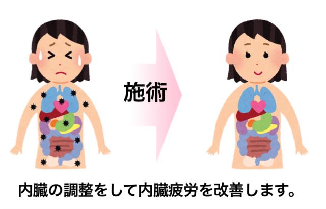 ぎっくり腰の治療3