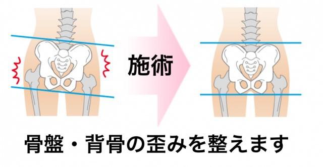 骨盤矯正と背骨の矯正