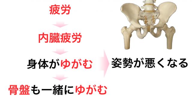 整体 CURAが考える骨盤がゆがむメカニズム