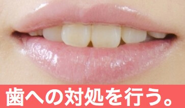 顎関節症への一般的な施術1