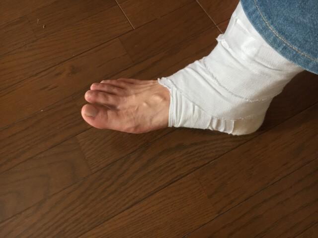 足底筋膜腱炎におこなわる対処3