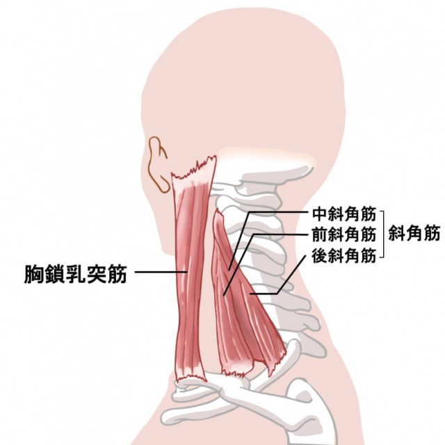 胸郭出口症候群の種類とは・・・