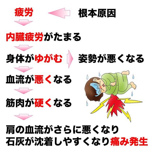 石灰沈着性腱板炎が起こるメカニズム