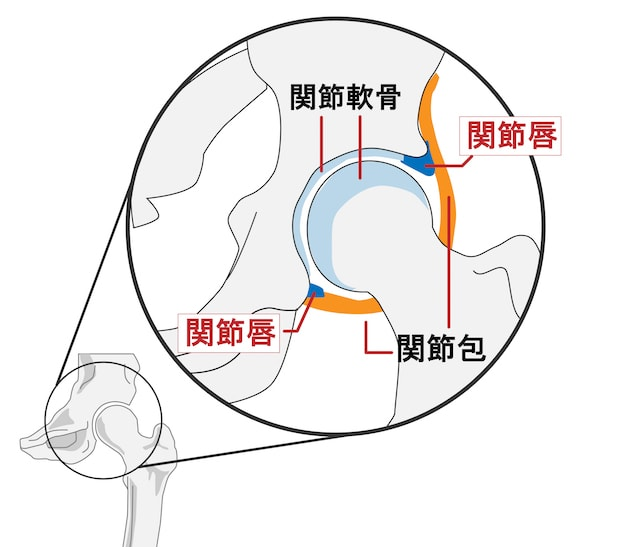 変形性股関節症の原因
