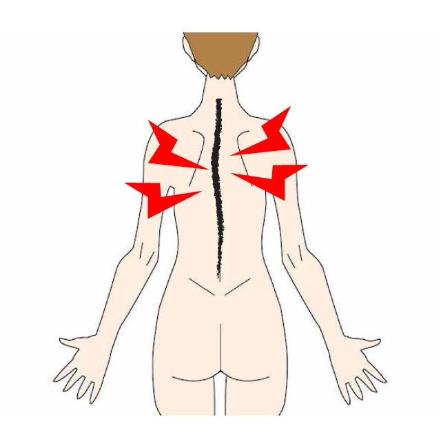 側湾症の症状