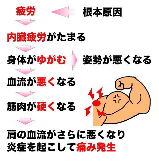 上腕二頭筋長頭腱炎の発生メカニズム